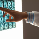 Describing a brain injury to a brain injury attorney